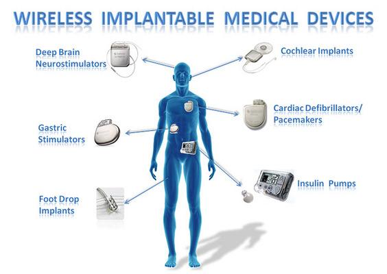 Dispositivi elettromedicali classificazione